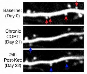 Dendritic spine remodeling. Images taken at baseline, after chronic stress, and after a single dose of ketamine. Red arrows point to eliminated spines; blue arrows to new spines.